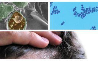 Как быстро избавиться от грибка малассезии?
