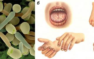 Жизнедеятельность патогенных грибов на коже человека – опасность, которая не дремлет
