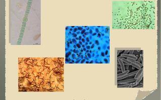 Как выглядят под микроскопом различные бактерии