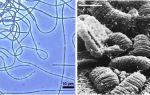 Опасны ли почвенные бактерии