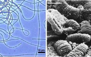 Жертва или тонкий расчет: l-формы бактерий избавляются от лишних органов