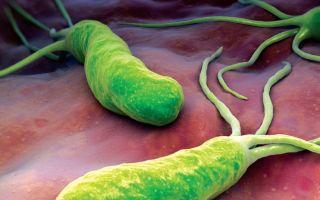 Бактерия, вызывающая гастрит желудка, – хеликобактер пилори