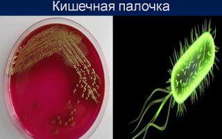 Живущая по соседству кишечная палочка – безобидная бактерия или вредный вирус?