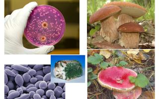 Огромный невидимый мир в микроскопии и его жители – бактерии, грибы, простейшие