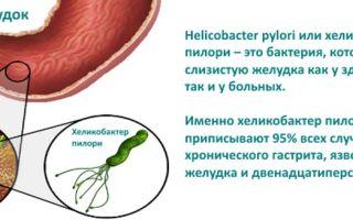 Лечение заболеваний желудка, вызванных хеликобактером