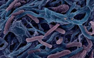 Любители тепла – термофильные свободноживущие бактерии