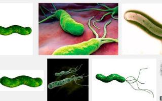Бактерия хеликобактер есть почти у всех, как распознать и как бороться?