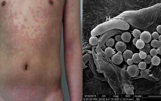 Влияние грибков рода malassezia на организм человека