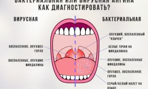 Бактерии и заболевания горла