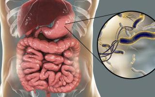 Желудочные бактерии: прогнать нельзя оставить?