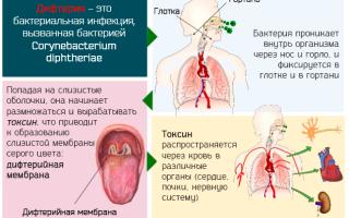 Бактериальная инфекция: симптомы и лечение у детей