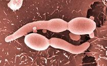 Ангина и ее возбудители – бактерии