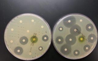 Устойчивость бактерий к антибиотикам «тренируется» на дне океана