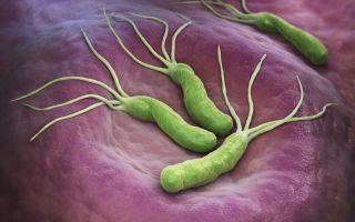 Зачем нужны и чем опасны бактерии для желудка
