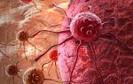 Предотвратить рост раковых клеток можно с помощью бактерий