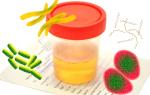 Терапия бактериурии, или чем лечить бактерии в моче?