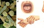 Признаки и лечение грибковых инфекций у человека