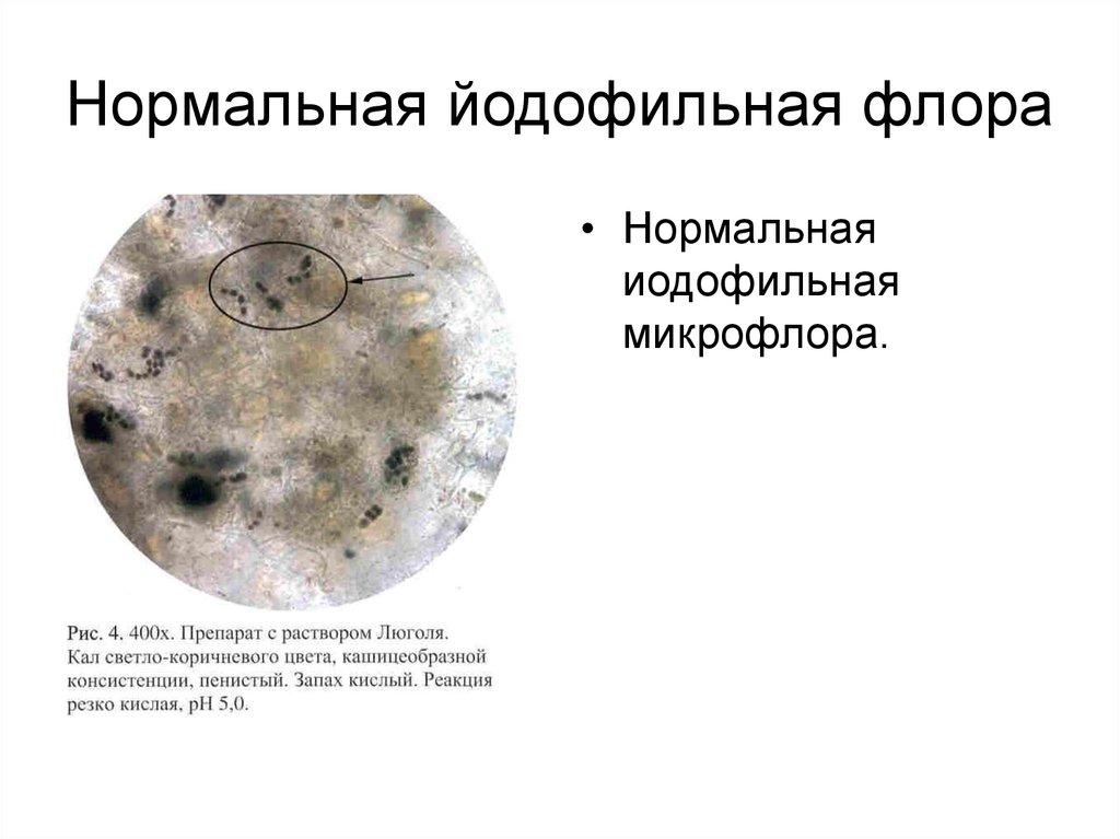 Йодофильные бактерии в кале у ребенка и как с ними бороться