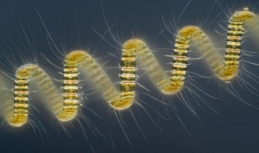 Микроскоп для микробов