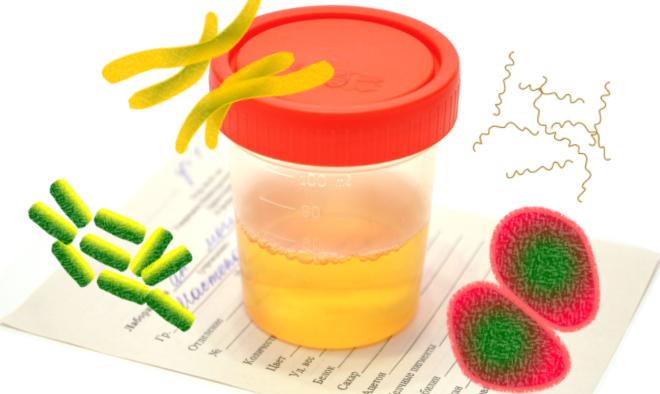 Что делать, если в моче обнаружены бактерии или белок?
