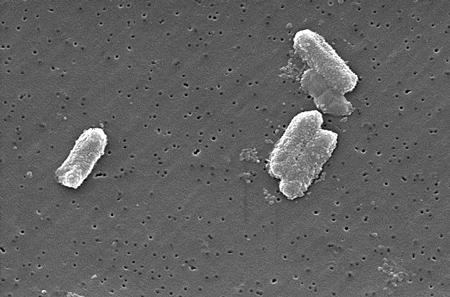 Цитробактер в анализе кала