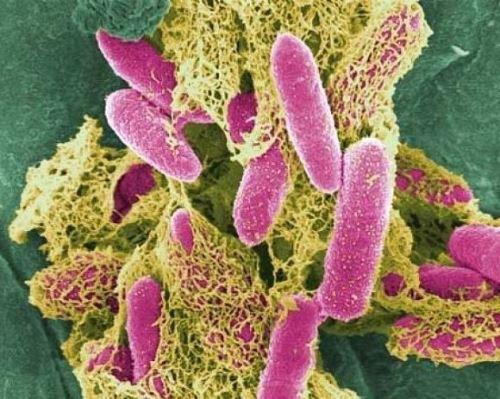 Причины и методы лечения бактериурии