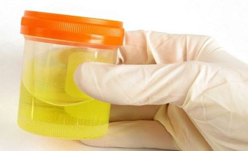 Бактерии в моче у ребенка